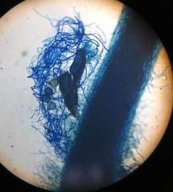 Micorrize : i funghi amici del tuo Bonsai !